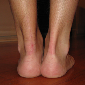 chronology achilles rupture recovery first weeks post